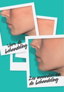 Belotero Revive huidverbetering behandeling