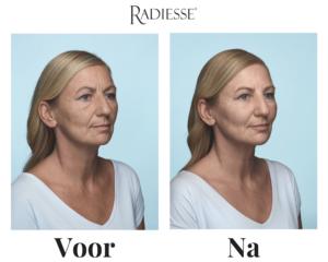 Radiesse®-voor-na