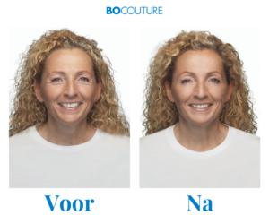 Bocouture®-voor-na