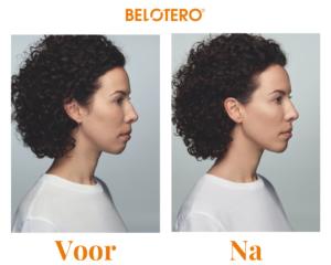 Belotero® voor - na